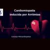 Cardiomiopatía inducida por Arritmias