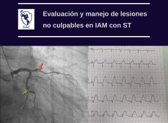 Evaluación y manejo de lesiones no culpables en IAM con elevación del ST