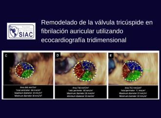 Comprendiendo el remodelado de la válvula tricúspide en fibrilación auricular utilizando ecocardiografía tridimensional