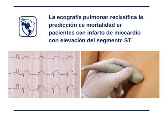 La ecografía pulmonar reclasifica la predicción de mortalidad en pacientes con infarto de miocardio con elevación del segmento ST