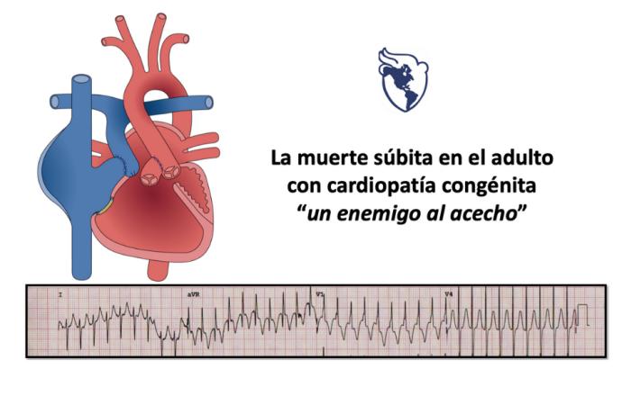 Predicción de muerte súbita de origen cardíaco en adultos con cardiopatía congénita
