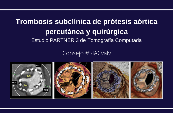 Trombosis subclínica de prótesis aórtica percutánea y quirúrgica