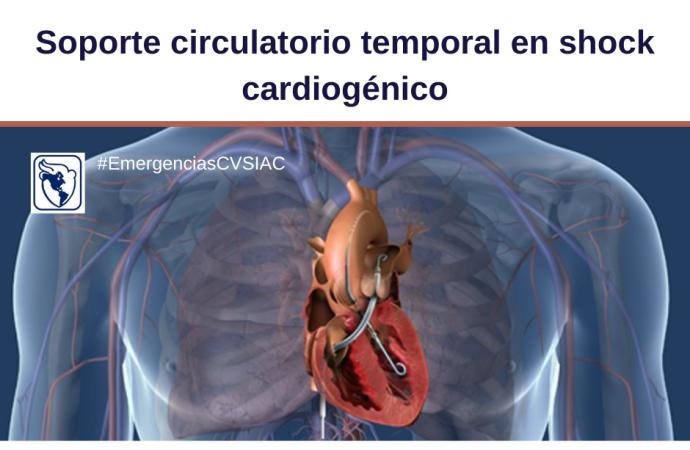 Soporte circulatorio temporal para el shock cardiogénico