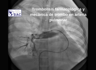 Trombolisis farmacológica y mecánica de trombo en arteria pulmonar