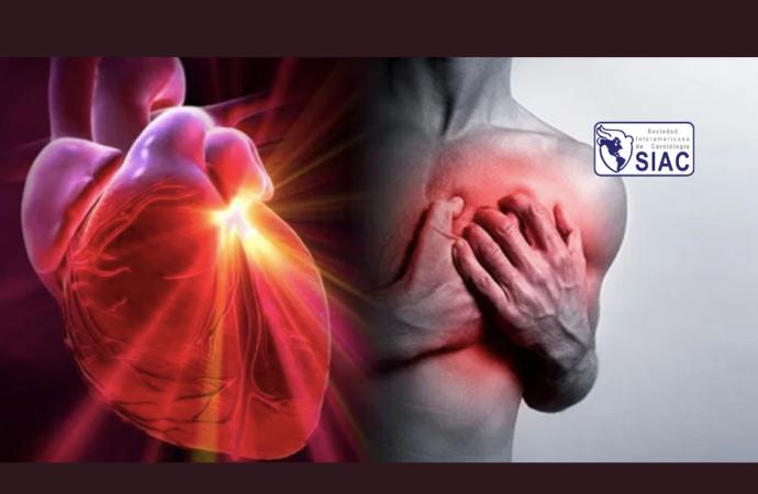 Evaluación y manejo de pacientes con angina estable: más allá del paradigma de la isquemia