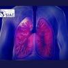 Manejo avanzado del Tromboembolismo de pulmón de riesgo intermedio alto