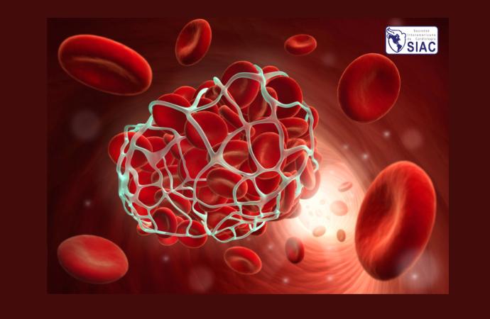Patrones de anticoagulación en pacientes con cáncer y fibrilación o aleteo auricular