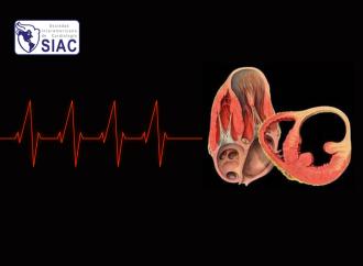 Terapias avanzadas para arritmias ventriculares en pacientes con cardiomiopatía chagásica