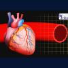 Epidemiología y Manejo de las Enfermedades de la Aorta