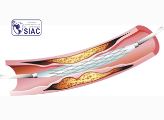 Lesión miocárdica, infarto y mortalidad por procedimientos en pacientes con SCC sometidos a angioplastia coronaria electiva