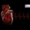Obesidad y fibrilación auricular