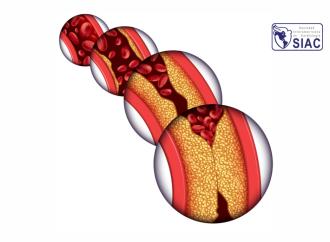 Consenso Latinoamericano para el manejo del Riesgo Residual Cardiometabólico
