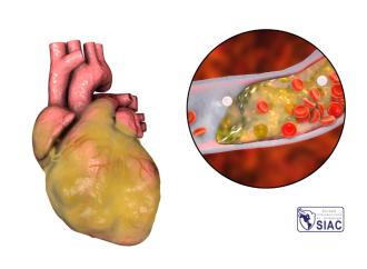 Reperfusión espontánea en pacientes con infarto agudo de miocardio y elevación transitoria del segmento ST – Prevalencia, importancia y terapéutica